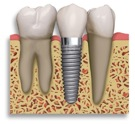 dental-implant-picture